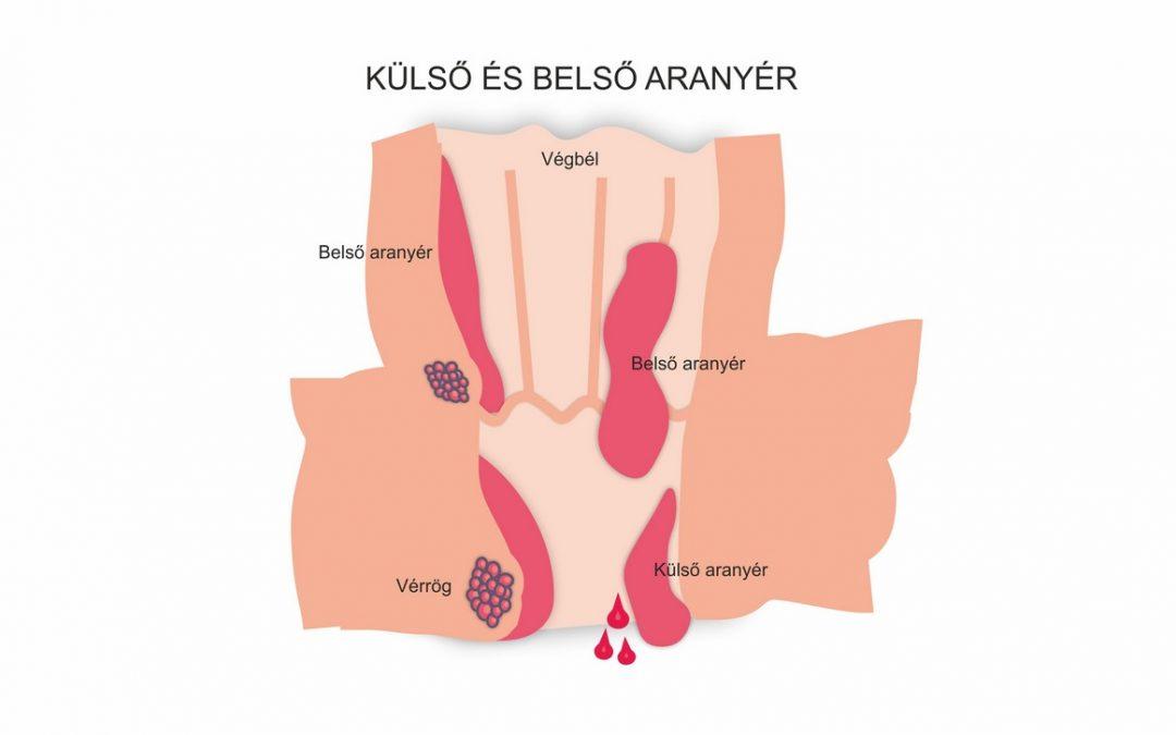 Véres széklet-belső aranyér