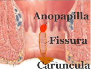 Végbélrepedés (fissura ani), szükséges-e a műtét