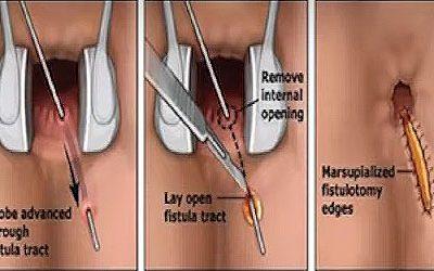 Sipoly műtét – itt van minden, amit nagyon tudni szeretne a végbélsipoly műtétről
